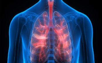 Chronic Obstructive Pulmonary Disease - What It Means for You